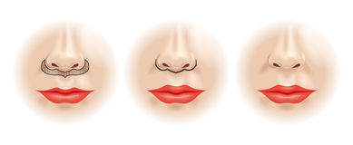 Scheme correction of the upper lip. Royalty Free Stock Images