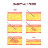 Scheme of cosmetic surgery Stock Photography