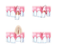 Scheme dislocations teeth Stock Photography