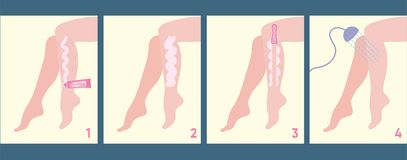 Scheme of how applying depilatory cream. Illustration shows steps of applying cream to delete unwanted hair Royalty Free Stock Image