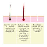 Scheme of laser hair removal. Description of the cosmetology procedure. Royalty Free Stock Photography