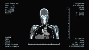 Schermo medico di risonanza magnetica, immagini del CAT o di CT stock footage