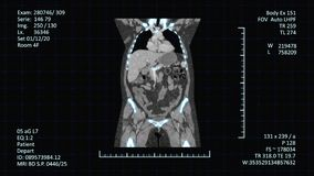 Schermo moderno di risonanza magnetica stock footage