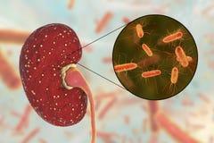 Scherpe pyelonephritis, medisch concept, en close-upmening van bacteriën Escherichia coli Royalty-vrije Stock Fotografie