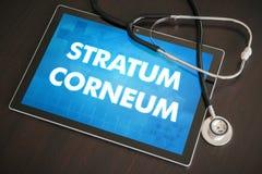 Schicht corneum (Haut- Krankheit bezogen) Diagnose medizinische Co lizenzfreie stockfotos