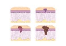 Schicht des normalen Haut- und Krebszellverbreitens in der Vektorart lizenzfreie abbildung