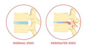 Schijfdegeneratie Menselijke anatomie Stekelprobleem Gezond vector illustratie