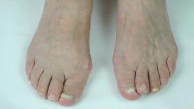 Schimmelbesmetting op spijkers van persoons` s voet stock videobeelden