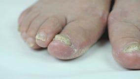 Schimmelbesmettingen van voeten van oude vrouw stock footage