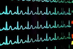 Schirm mit Kardiogramm Lizenzfreie Stockfotos