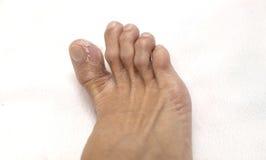 Schließen Sie herauf die Fuß-Männer, die Haut abziehen stockbild