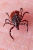Schließen Sie herauf Makro von Rotwild Tick Crawling auf Haut Lizenzfreie Stockfotografie