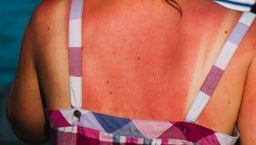 Schließen Sie oben auf burnet Haut durch die Sonne auf der Frau Lizenzfreie Stockbilder