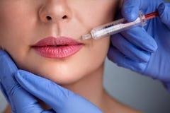 Schließen Sie oben vom Lippen-botox stockfoto