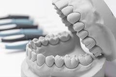 Schließen Sie oben vom menschlichen Zahnfleischmodell des Lehms Stockbild