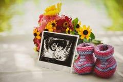 Schließen Sie oben vom Ultraschallbild, vom Foto des zukünftigen Babys am Bauch und von den kleinen Babyschuhen Stockfotos