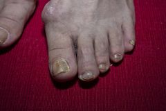 Schließen Sie oben von den kranken Nägeln zu Fuß Lizenzfreie Stockfotos