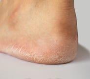 Schließen Sie oben von der Ferse, die vom Fuß geknackt wird lizenzfreie stockfotos