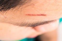 Schließen Sie oben von der schmerzlichen Wunde auf Stirn vom tiefen Schnitt lizenzfreies stockfoto