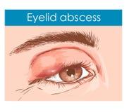 Schließen Sie oben von einem Auge mit einem angesteckten Augenlid lizenzfreie abbildung