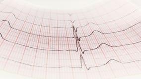 Schließen Sie oben von einem Elektrokardiogramm in der Papierform stockbild