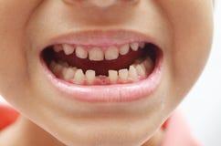 Schließlich erstes der Milchzähne zahnlos Jungenlächeln heraus stockfotografie