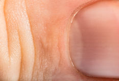 Schließen Sie herauf menschliche Haut und Greifer. Makroepidermis Stockfoto