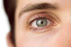 Schließen Sie oben von a bemannt Auge Stockfoto