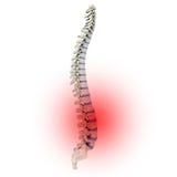 Schmerz in den intervertebralen Platten Lizenzfreie Stockbilder