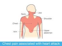 Schmerz in der Brust verbunden mit Herzinfarkt stock abbildung