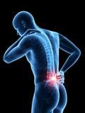 Schmerz in der Rückseite stock abbildung