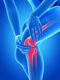 Schmerz im Knie lizenzfreie abbildung