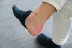 Schmerzliche Fersenwunde bemannt an die Füße, die durch neue Schuhe verursacht werden Gebrochenes ter stockfoto