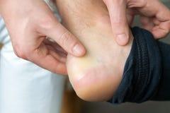 Schmerzliche Fersenwunde bemannt an die Füße, die durch neue Schuhe verursacht werden bemannt die Hände, die Gips auf schrecklich lizenzfreies stockfoto