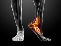 Schmerzliche Fußabbildung Stockfoto
