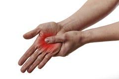 Schmerzliche Hand Lizenzfreie Stockbilder