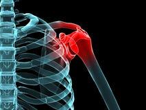 Schmerzliche Schulter Stockbild