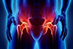 Schmerzlicher skeleton Röntgenstrahl der Hüfte, Illustration 3D Lizenzfreie Stockfotos