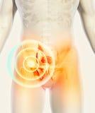 Schmerzlicher skeleton Röntgenstrahl der Hüfte, Illustration 3D Lizenzfreie Stockbilder