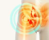 Schmerzlicher skeleton Röntgenstrahl der Hüfte, Illustration 3D Lizenzfreie Stockfotografie