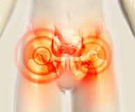 Schmerzlicher skeleton Röntgenstrahl der Hüfte, Illustration 3D Stockbild