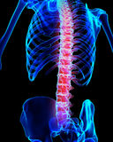 Schmerzlicher skeleton Röntgenstrahl des Dorns, Illustration 3D Stockfoto