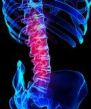Schmerzlicher skeleton Röntgenstrahl des Dorns, Illustration 3D Stockbild