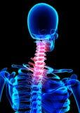 Schmerzlicher skeleton Röntgenstrahl des Halses, Illustration 3D Stockbilder