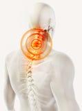 Schmerzlicher skeleton Röntgenstrahl des Halses, Illustration 3D Lizenzfreies Stockfoto