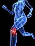 Schmerzliches Knie Stockfotos
