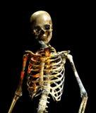 Schmutzige Knochen Stockbild