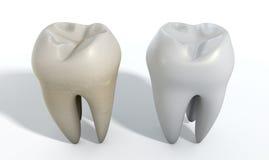 Schmutziger sauberer Zahn-Vergleich Lizenzfreies Stockbild