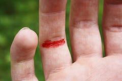Schneiden Sie Finger Stockfotografie
