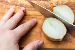 Schneiden Sie Verletzung, schneiden Sie in Finger mit Zwiebel stockfoto